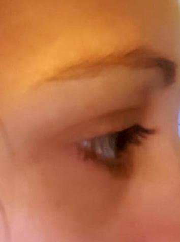 eyelash Before
